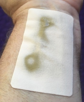 Papa & Barkley Transdermal THC CBD Patch showing discoloration and seepage